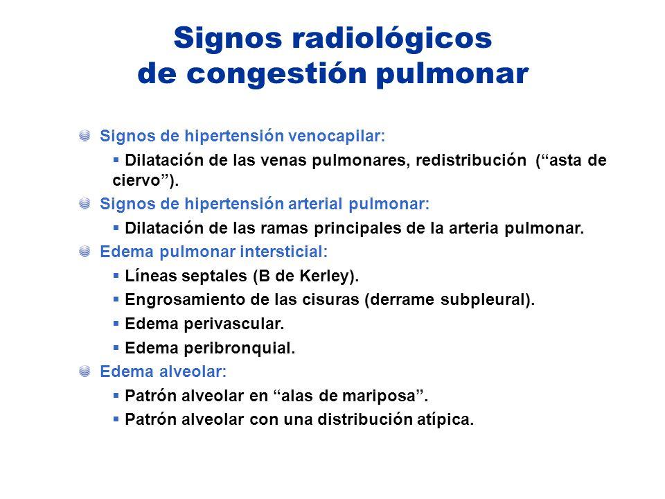Signos radiológicos de congestión pulmonar Signos de hipertensión venocapilar: Dilatación de las venas pulmonares, redistribución (asta de ciervo). Si