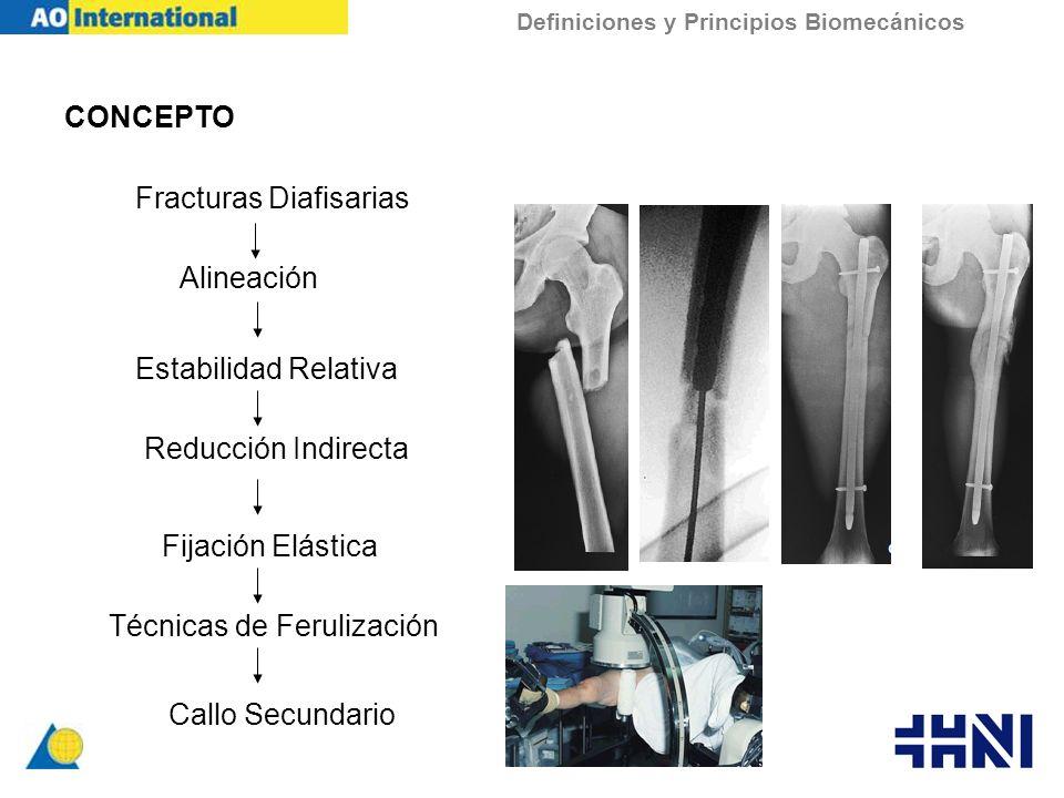 CONCEPTO Definiciones y Principios Biomecánicos Fracturas Diafisarias Alineación Estabilidad Relativa Reducción Indirecta Fijación Elástica Técnicas d