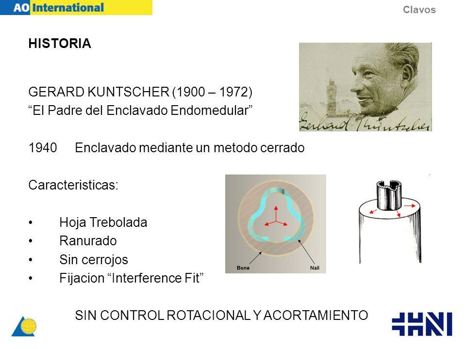 HISTORIA GERARD KUNTSCHER (1900 – 1972) El Padre del Enclavado Endomedular 1940Enclavado mediante un metodo cerrado Caracteristicas: Hoja Trebolada Ra
