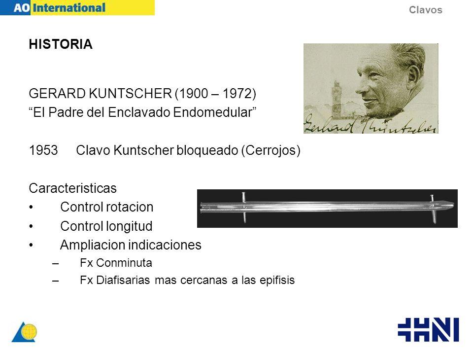 HISTORIA GERARD KUNTSCHER (1900 – 1972) El Padre del Enclavado Endomedular 1953Clavo Kuntscher bloqueado (Cerrojos) Caracteristicas Control rotacion C