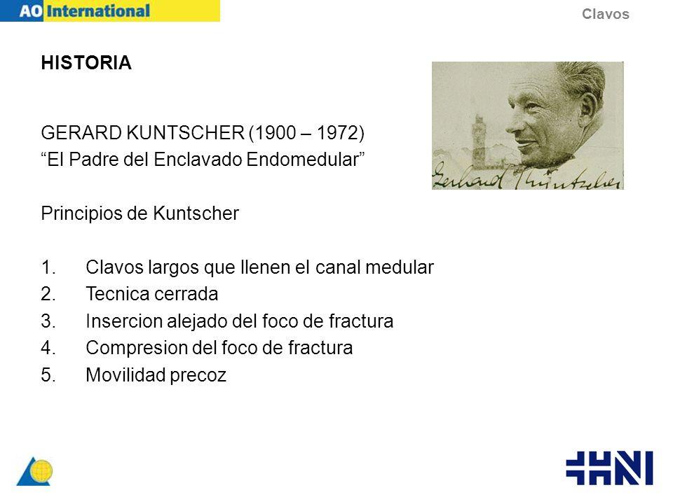HISTORIA GERARD KUNTSCHER (1900 – 1972) El Padre del Enclavado Endomedular Principios de Kuntscher 1.Clavos largos que llenen el canal medular 2.Tecni