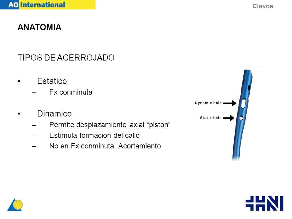 ANATOMIA TIPOS DE ACERROJADO Estatico –Fx conminuta Dinamico –Permite desplazamiento axial piston –Estimula formacion del callo –No en Fx conminuta. A