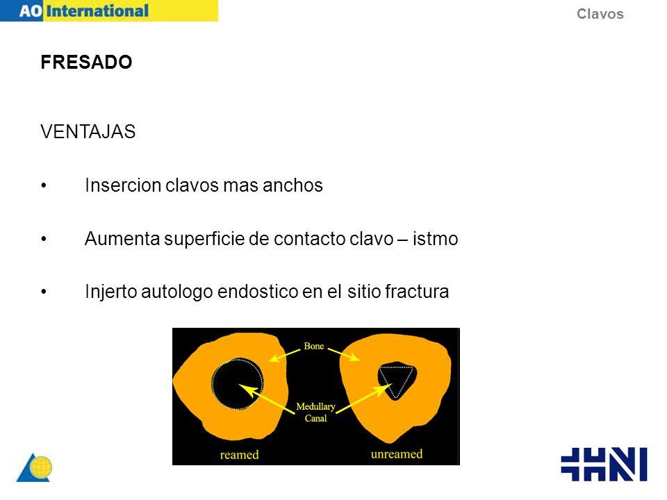 FRESADO VENTAJAS Insercion clavos mas anchos Aumenta superficie de contacto clavo – istmo Injerto autologo endostico en el sitio fractura Clavos