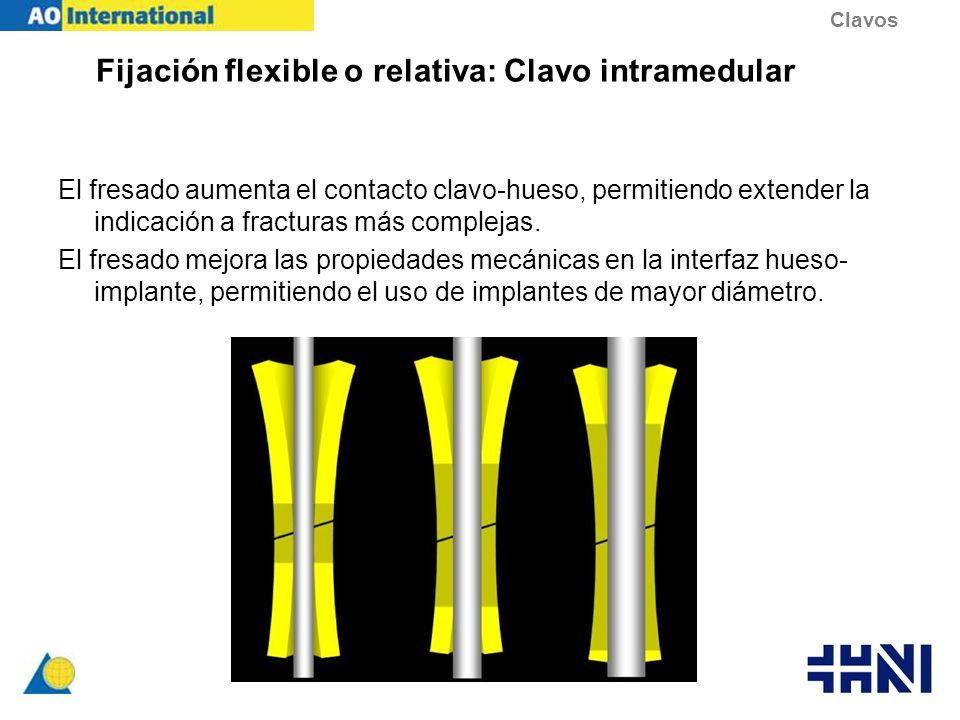 Fijación flexible o relativa: Clavo intramedular El fresado aumenta el contacto clavo-hueso, permitiendo extender la indicación a fracturas más comple