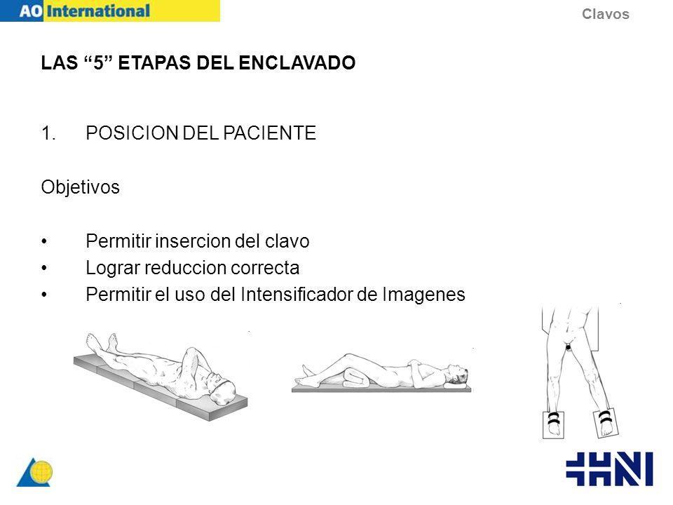 LAS 5 ETAPAS DEL ENCLAVADO 1.POSICION DEL PACIENTE Objetivos Permitir insercion del clavo Lograr reduccion correcta Permitir el uso del Intensificador
