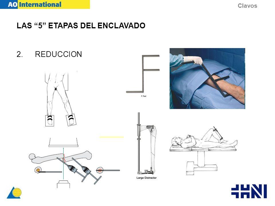 LAS 5 ETAPAS DEL ENCLAVADO 2.REDUCCION Clavos