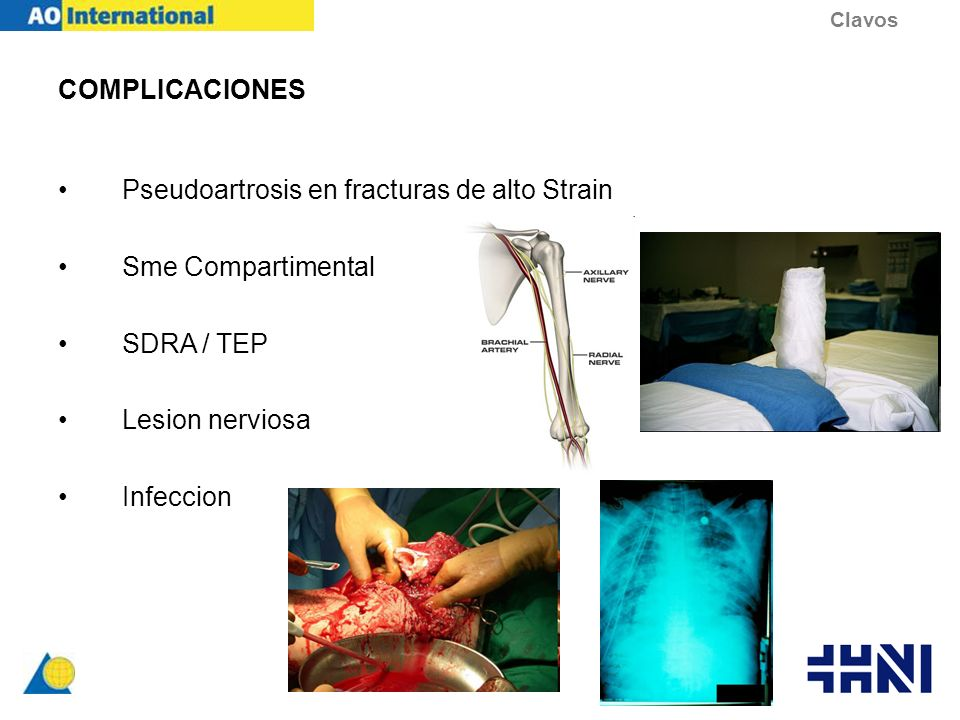 COMPLICACIONES Pseudoartrosis en fracturas de alto Strain Sme Compartimental SDRA / TEP Lesion nerviosa Infeccion Clavos