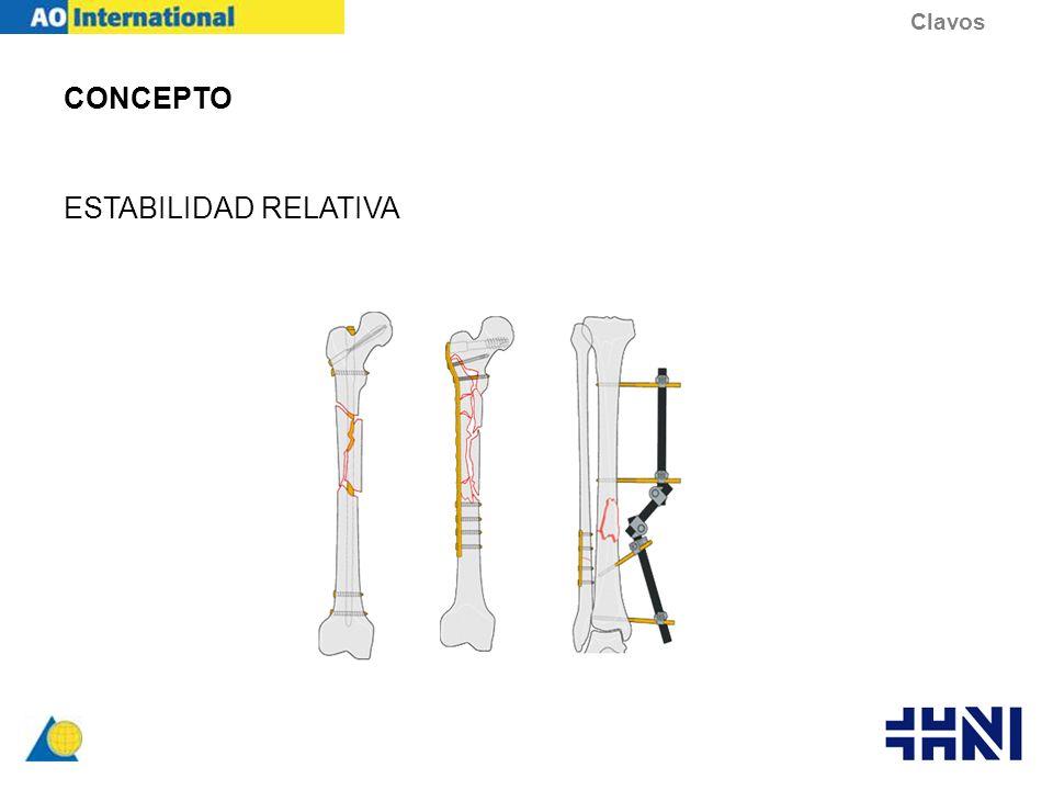 ANATOMIA GEOMETRIA Seccion transversal –Ranurados (mas elasticos) –No Ranurados (mas rigidos) Macizos Canulados Clavos