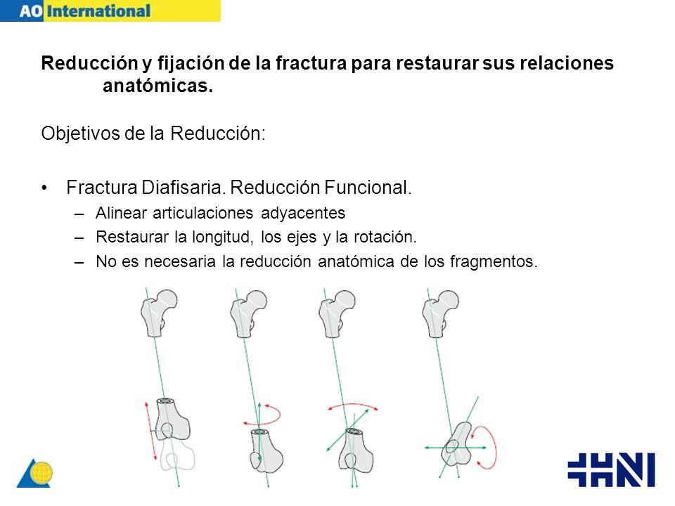 Reducción y fijación de la fractura para restaurar sus relaciones anatómicas. Objetivos de la Reducción: Fractura Diafisaria. Reducción Funcional. –Al