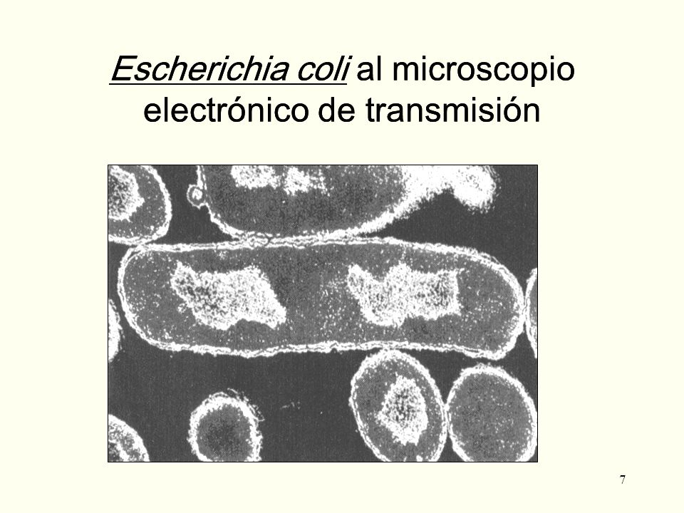 7 Escherichia coli al microscopio electrónico de transmisión