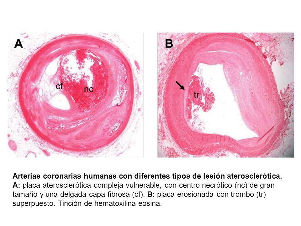 Arterias coronarias humanas con diferentes tipos de lesión aterosclerótica. A: placa aterosclerótica compleja vulnerable, con centro necrótico (nc) de