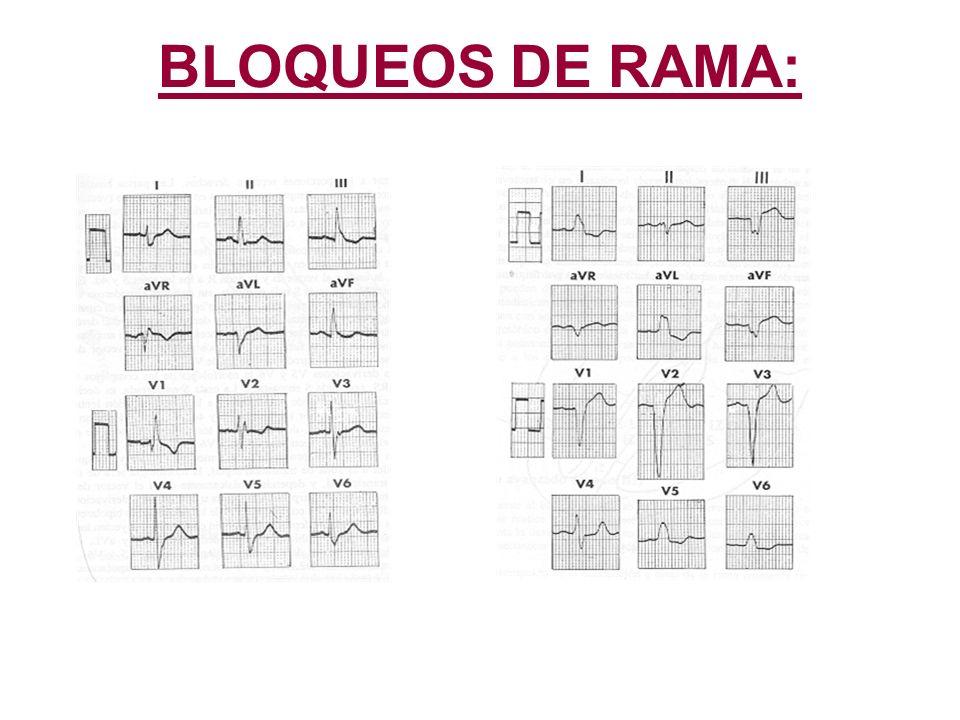 BLOQUEOS DE RAMA: