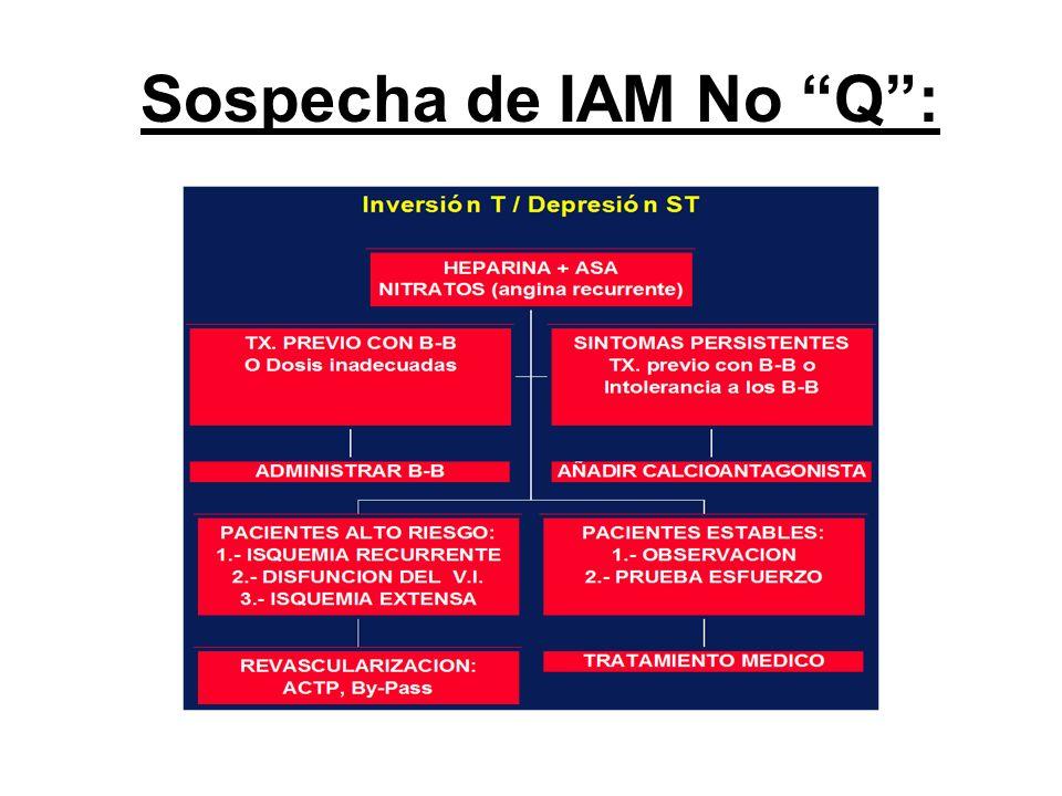 Sospecha de IAM No Q: