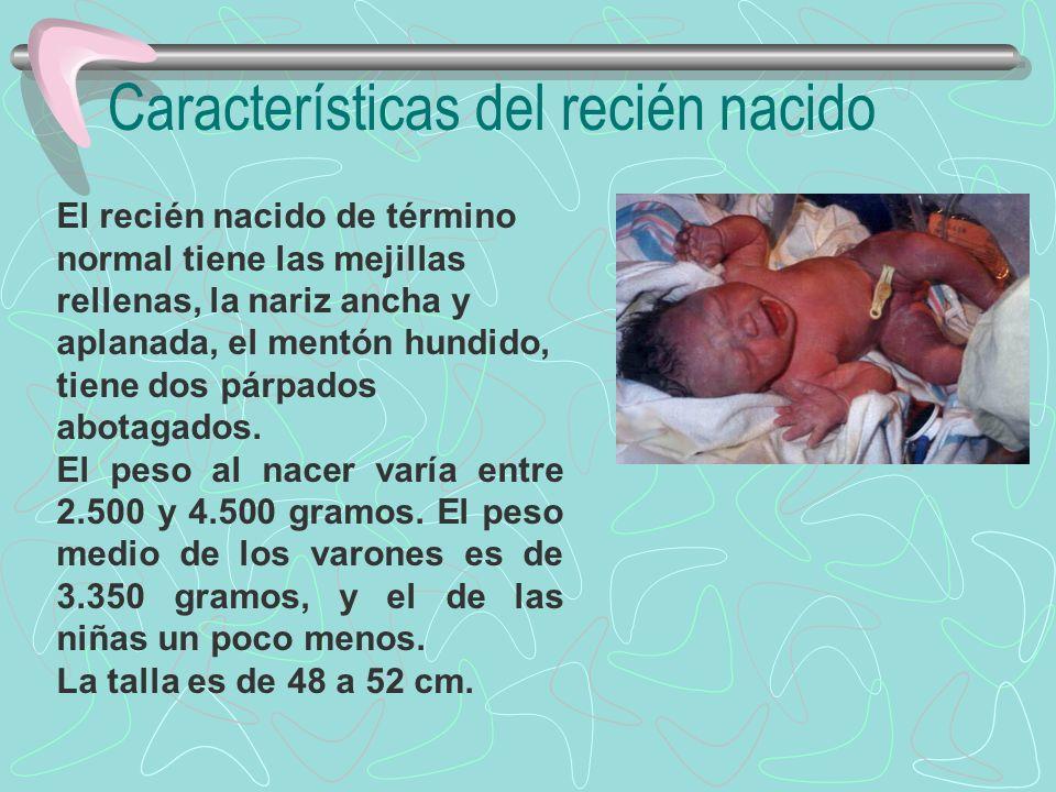 Características del recién nacido El cuello es corto, los hombros caídos, el abdomen grande y redondeado, y la pelvis estrecha.