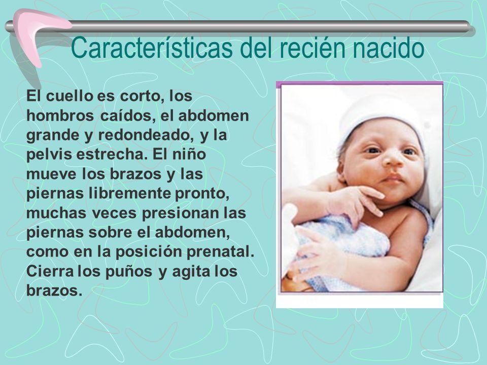 Características del recién nacido El cuello es corto, los hombros caídos, el abdomen grande y redondeado, y la pelvis estrecha. El niño mueve los braz
