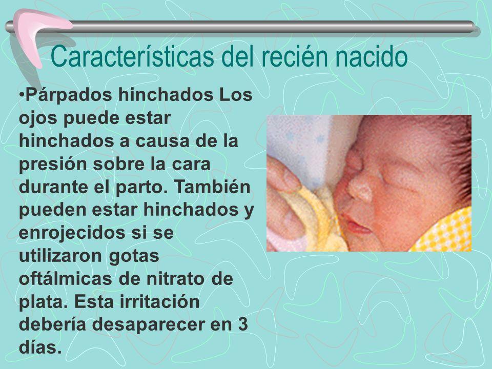 Párpados hinchados Los ojos puede estar hinchados a causa de la presión sobre la cara durante el parto. También pueden estar hinchados y enrojecidos s