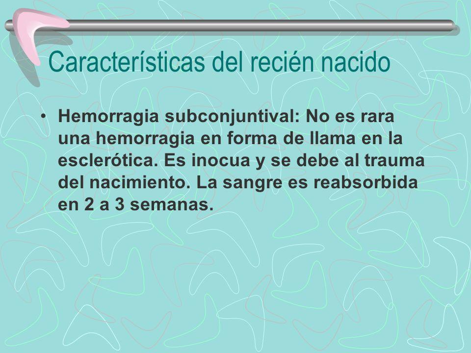 Características del recién nacido Hemorragia subconjuntival: No es rara una hemorragia en forma de llama en la esclerótica. Es inocua y se debe al tra