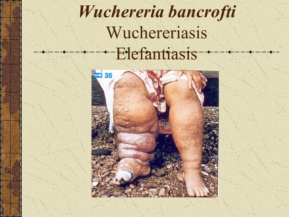 Wuchereria bancrofti Wuchereriasis Elefantiasis