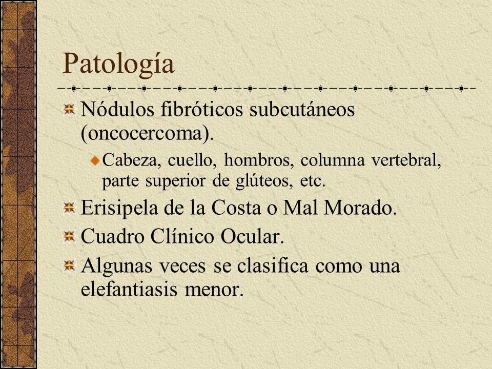 Patología Nódulos fibróticos subcutáneos (oncocercoma). Cabeza, cuello, hombros, columna vertebral, parte superior de glúteos, etc. Erisipela de la Co