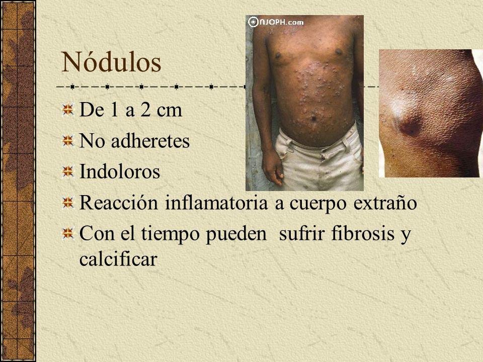 Nódulos De 1 a 2 cm No adheretes Indoloros Reacción inflamatoria a cuerpo extraño Con el tiempo pueden sufrir fibrosis y calcificar