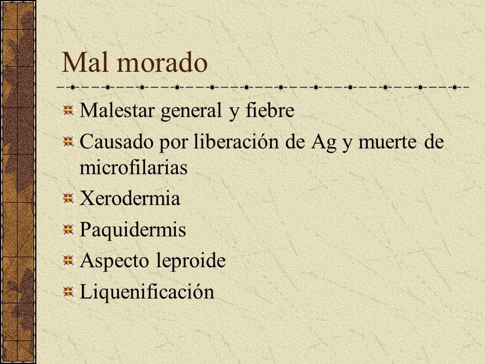Mal morado Malestar general y fiebre Causado por liberación de Ag y muerte de microfilarias Xerodermia Paquidermis Aspecto leproide Liquenificación