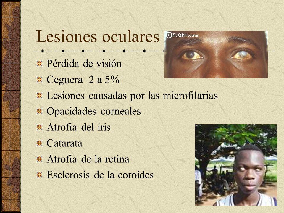 Lesiones oculares Pérdida de visión Ceguera 2 a 5% Lesiones causadas por las microfilarias Opacidades corneales Atrofia del iris Catarata Atrofia de l
