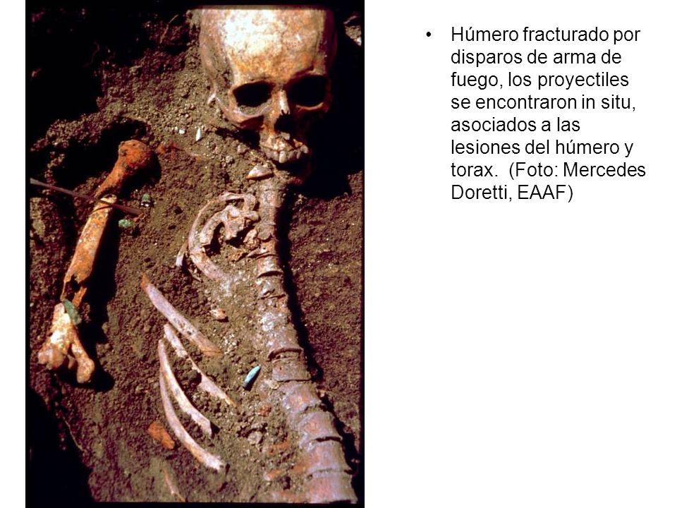 Húmero fracturado por disparos de arma de fuego, los proyectiles se encontraron in situ, asociados a las lesiones del húmero y torax. (Foto: Mercedes