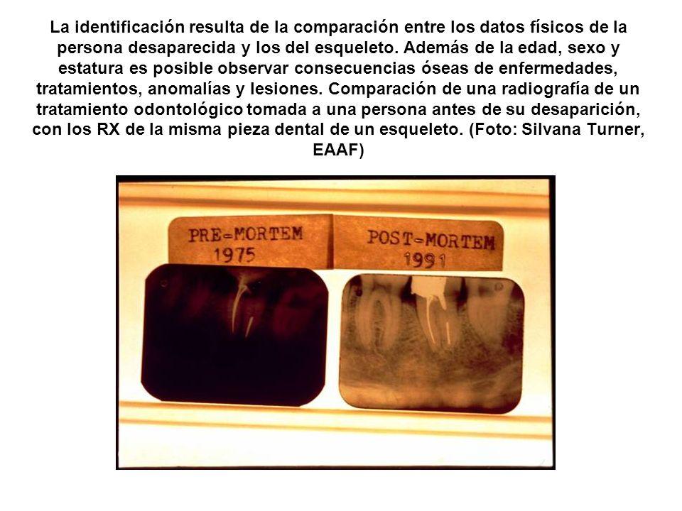 La identificación resulta de la comparación entre los datos físicos de la persona desaparecida y los del esqueleto. Además de la edad, sexo y estatura