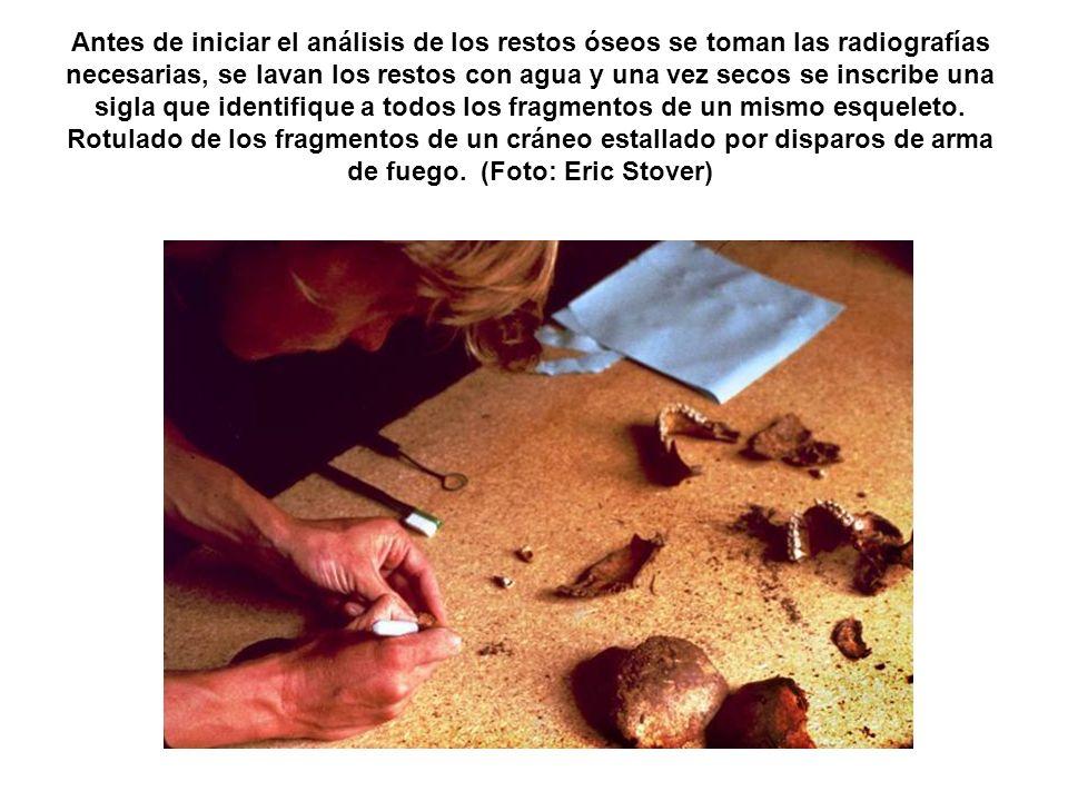 Antes de iniciar el análisis de los restos óseos se toman las radiografías necesarias, se lavan los restos con agua y una vez secos se inscribe una si