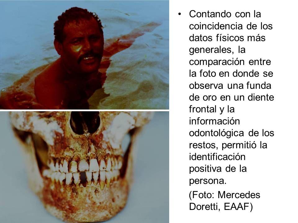Contando con la coincidencia de los datos físicos más generales, la comparación entre la foto en donde se observa una funda de oro en un diente fronta