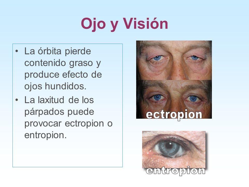 Ojo y Visión La órbita pierde contenido graso y produce efecto de ojos hundidos. La laxitud de los párpados puede provocar ectropion o entropion.