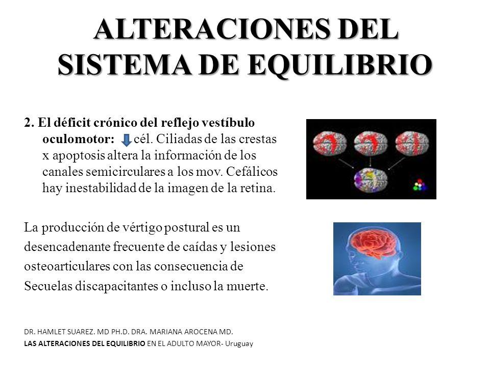 ALTERACIONES DEL SISTEMA DE EQUILIBRIO 2.El déficit crónico del reflejo vestíbulo oculomotor: cél.