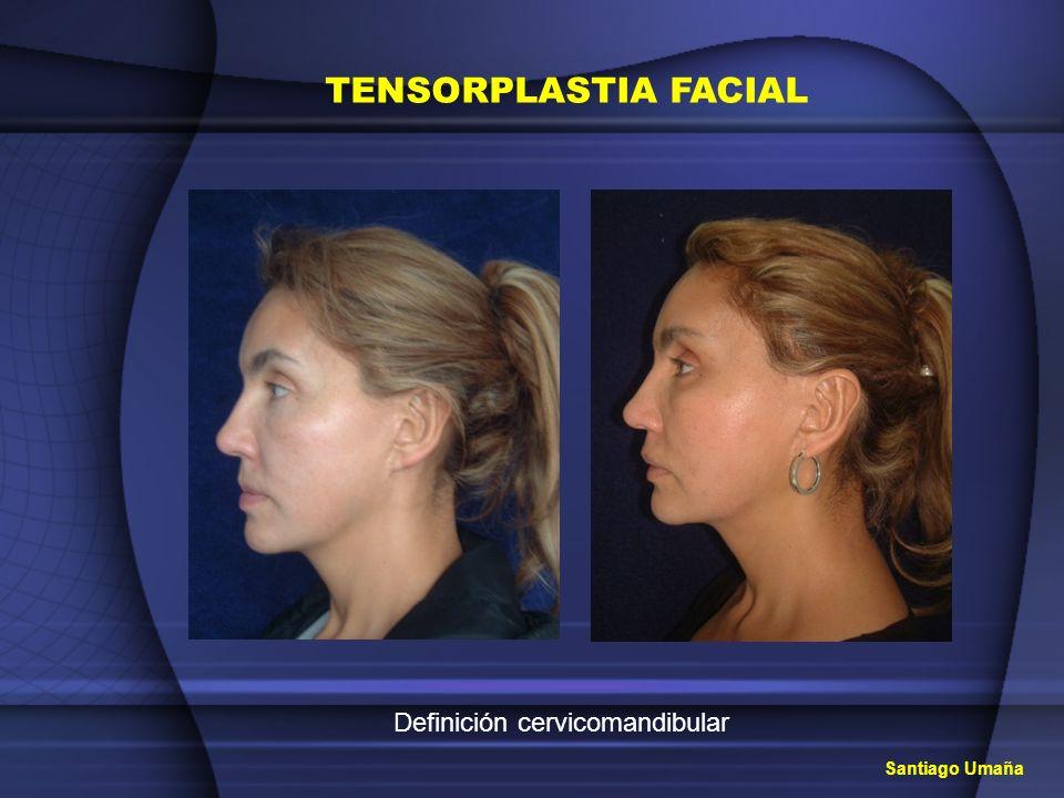 TENSORPLASTIA FACIAL Definición cervicomandibular Santiago Umaña