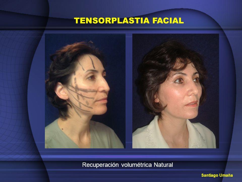 TENSORPLASTIA FACIAL Recuperación volumétrica Natural Santiago Umaña