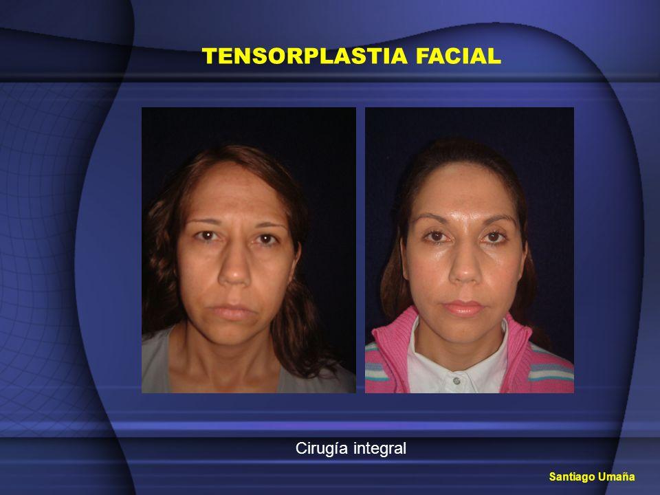 TENSORPLASTIA FACIAL Cirugía integral Santiago Umaña
