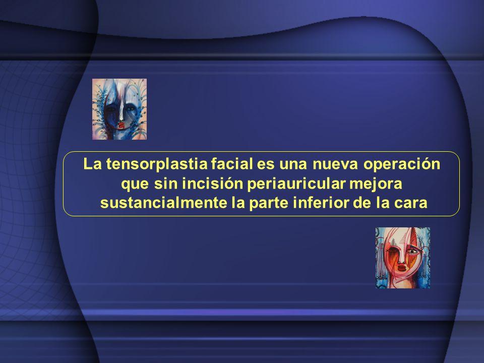 La tensorplastia facial es una nueva operación que sin incisión periauricular mejora sustancialmente la parte inferior de la cara