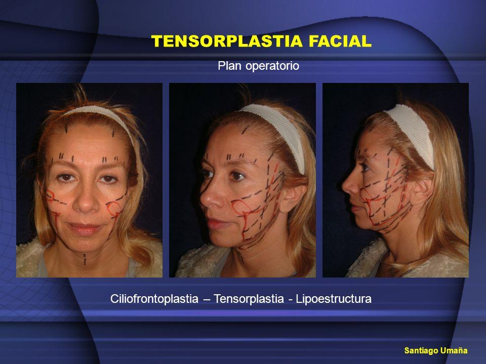 TENSORPLASTIA FACIAL Plan operatorio Ciliofrontoplastia – Tensorplastia - Lipoestructura Santiago Umaña