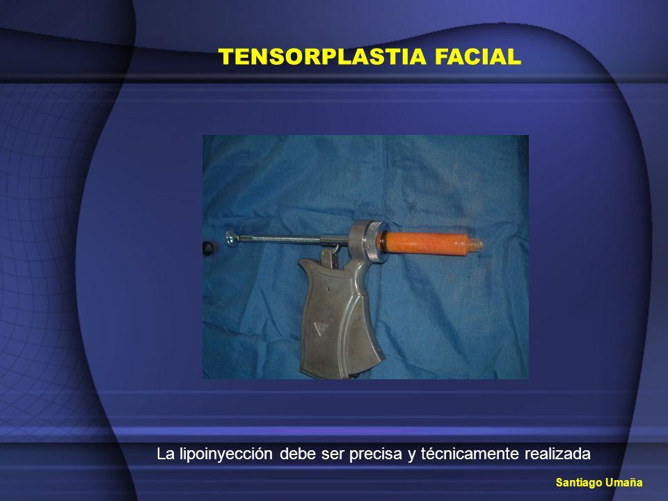 TENSORPLASTIA FACIAL La lipoinyección debe ser precisa y técnicamente realizada Santiago Umaña