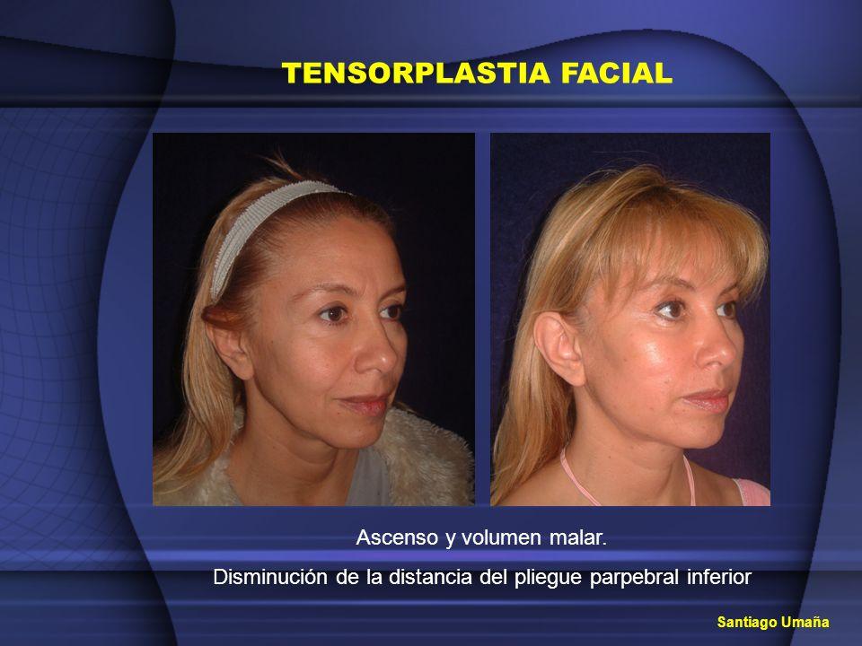 TENSORPLASTIA FACIAL Ascenso y volumen malar. Disminución de la distancia del pliegue parpebral inferior Santiago Umaña
