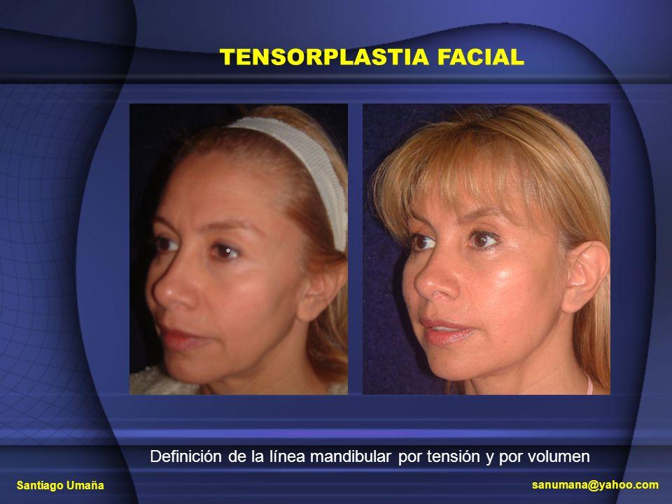 TENSORPLASTIA FACIAL Definición de la línea mandibular por tensión y por volumen Santiago Umaña sanumana@yahoo.com