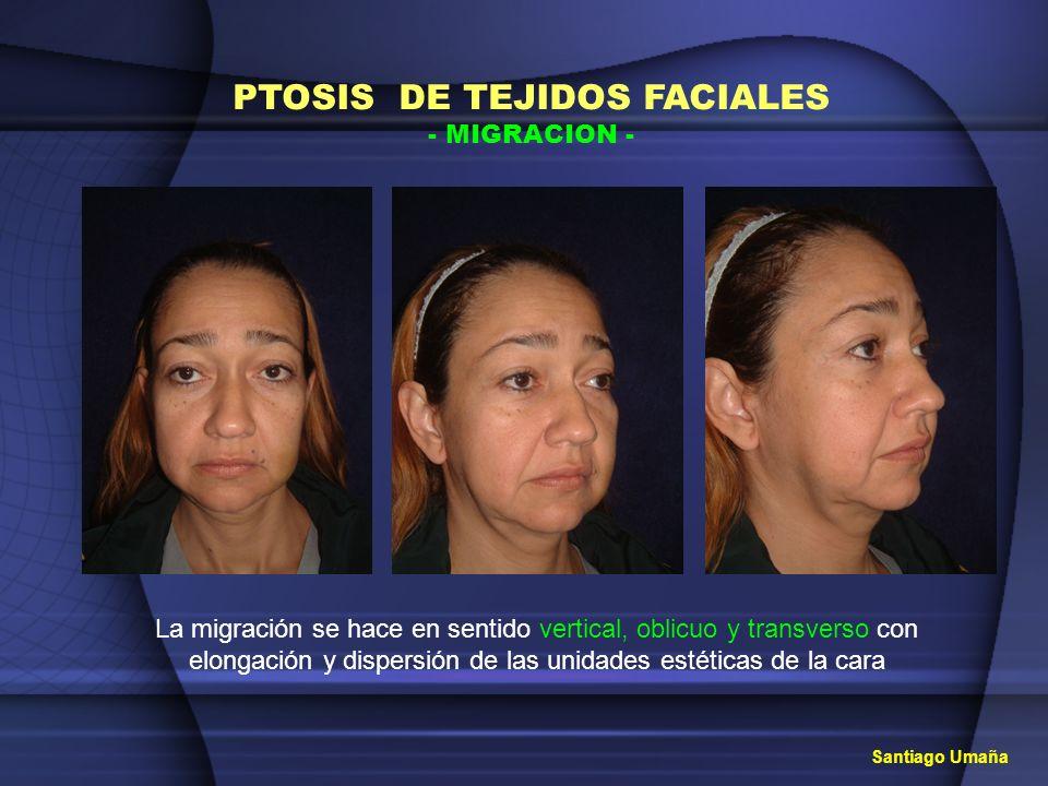PTOSIS DE TEJIDOS FACIALES - MIGRACION - Santiago Umaña La migración se hace en sentido vertical, oblicuo y transverso con elongación y dispersión de