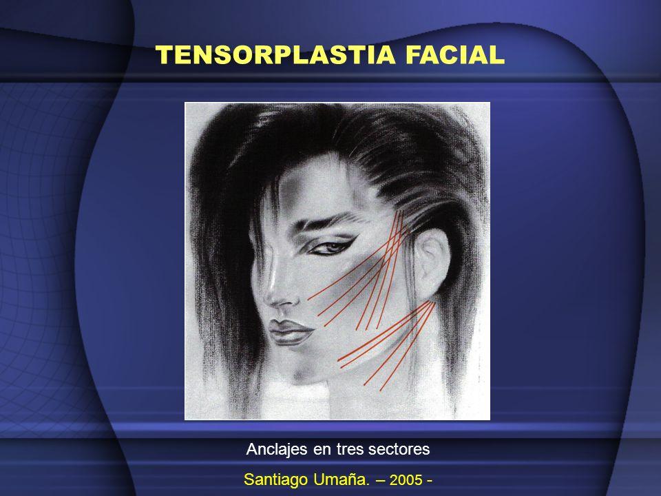 TENSORPLASTIA FACIAL Ascenso y volumen malar.