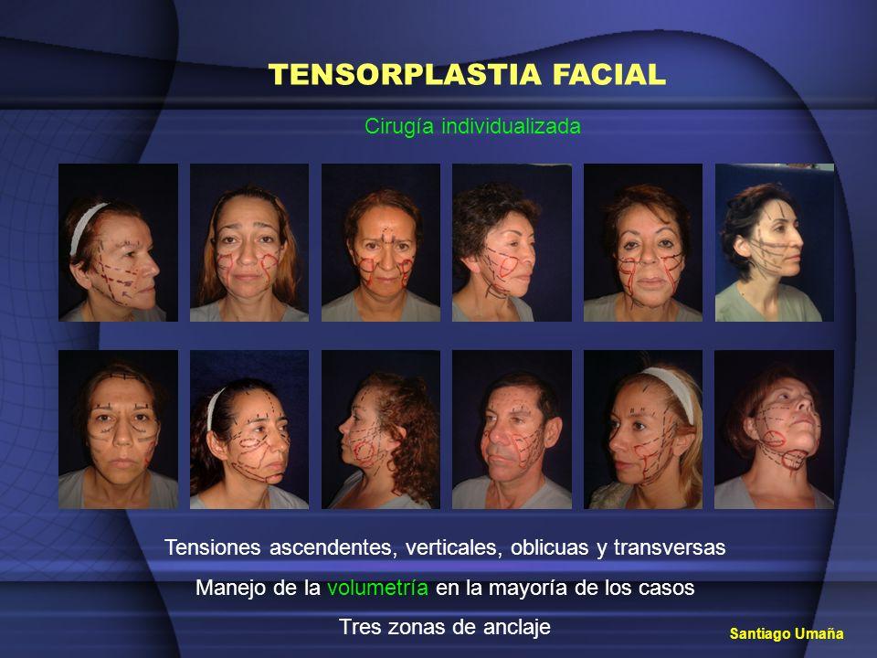 TENSORPLASTIA FACIAL Cirugía individualizada Tensiones ascendentes, verticales, oblicuas y transversas Manejo de la volumetría en la mayoría de los ca