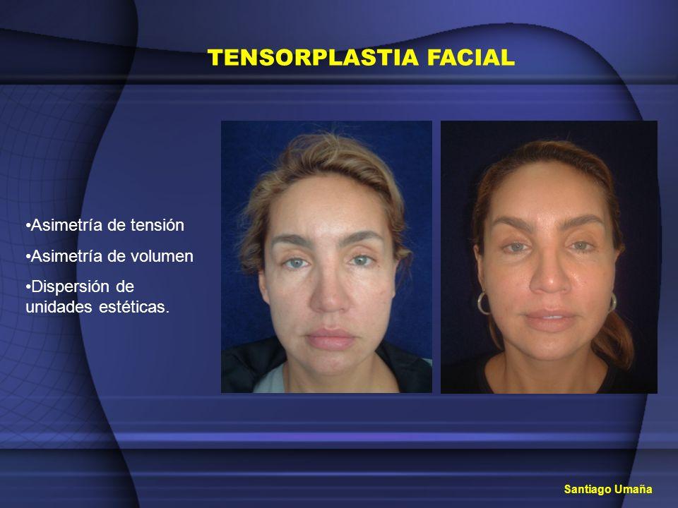TENSORPLASTIA FACIAL Asimetría de tensión Asimetría de volumen Dispersión de unidades estéticas. Santiago Umaña