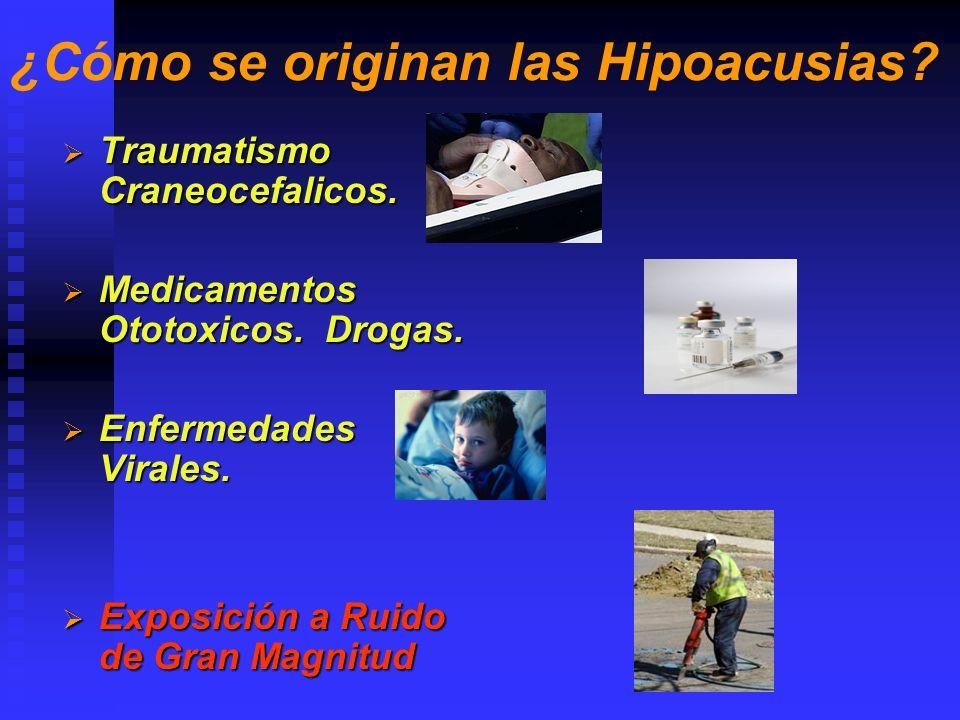 Hipocusias del oído externo Enfermedad Canal colapsado Canal colapsado Atresia.