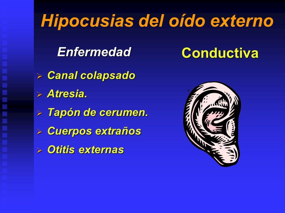 Hipocusias del oído Medio Enfermedad Perforación Timpánica Perforación Timpánica Otosclerosis.