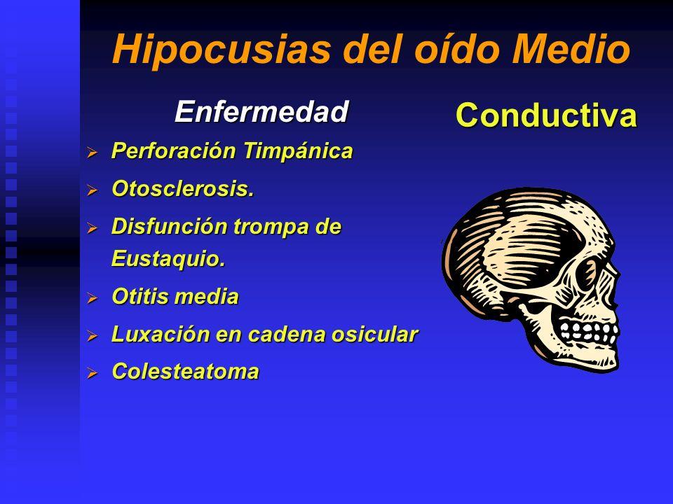 Hipocusias del oído Interno Enfermedad Otopatia por Ototoxicos Otopatia por Ototoxicos Traumatismo C.E.