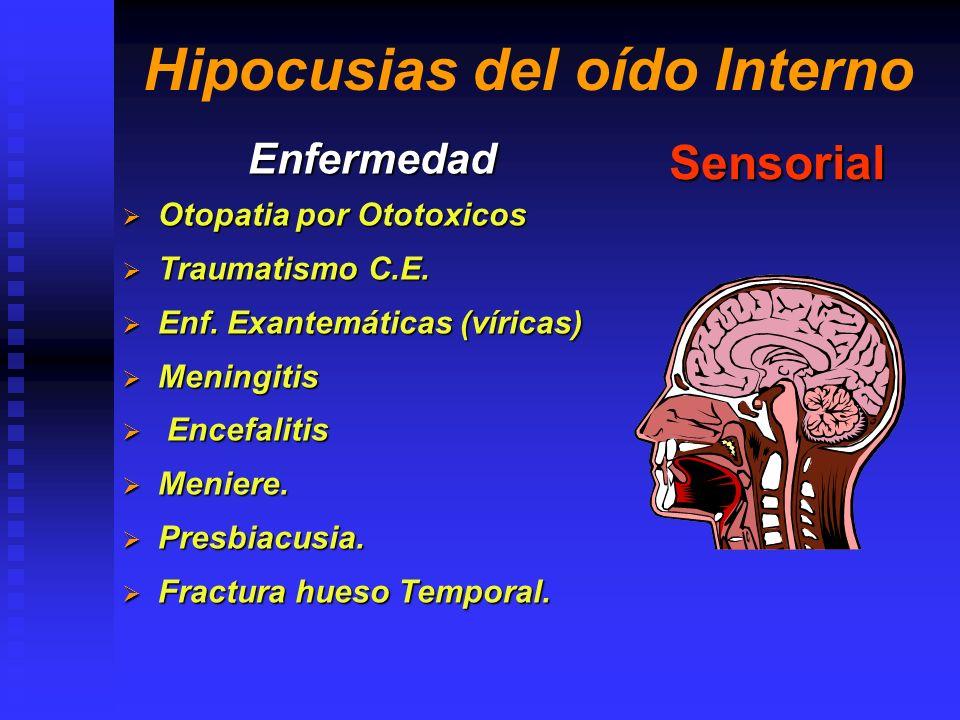 Hipocusias Ocupacionales Enfermedad Trauma Acústico Crónico Trauma Acústico Crónico Sensorial Trauma Acústico Agudo Trauma Acústico Agudo Barotruma Barotruma Mixta (Conductiva y Sensorial)