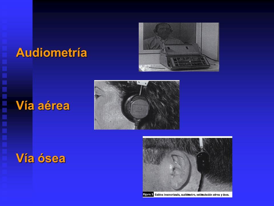 El oído humano es capaz de discernir sonidos cuyas frecuencias oscilen entre los 20 y los 20.000 hertzios.