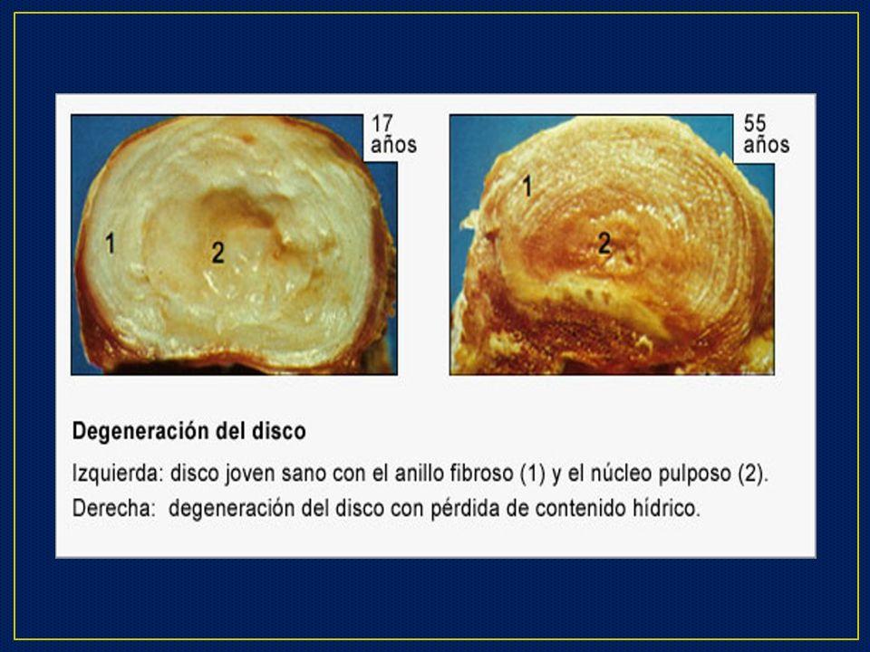 Lumbalgia Mecano Postural Diagnóstico Clínico: Lumbalgia.